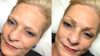 Case Study 2: Microblading for Denise