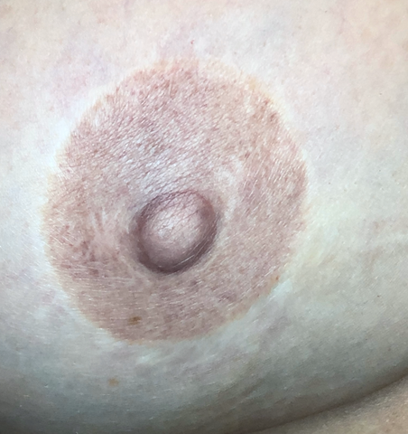 Areola Tattoo Healed Results by Jill Hoyer