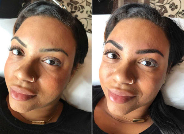 Amber Before and Immediately After Results