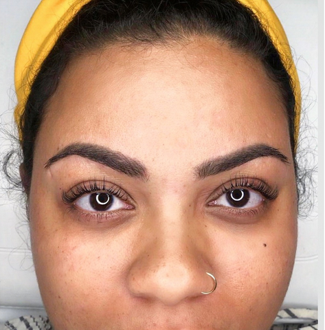 Amber's Healed Results 13 Months in Ebony by Tina Davies
