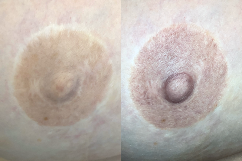 Areola Tattoo Before and After Results by Jill Hoyer