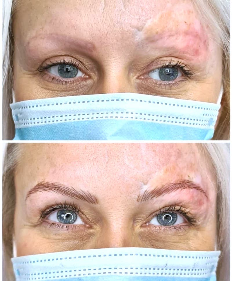 Tina Davies Case Study Nanobrows and Tattooing with Scarring