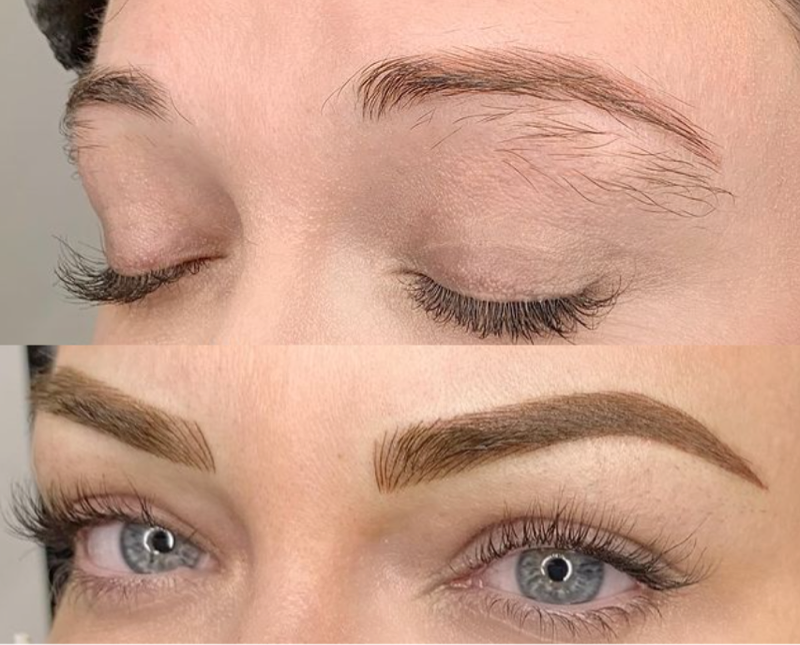 Case Study Before and After of Emily Joy Color And Shape Correction