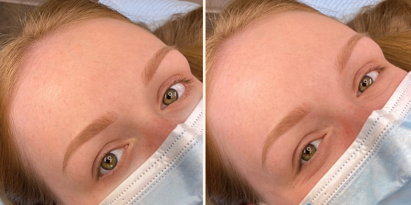 Case Study Client Healed Permanent Makeup Eyebrows in Toffee