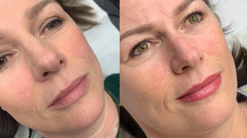 Tina Davies Case Study I Love Ink Lip PMU Pigments in Magenta and Dusty Pink Before and Healed
