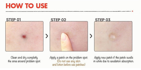 Miracle Patch for Acne and Skin Tags