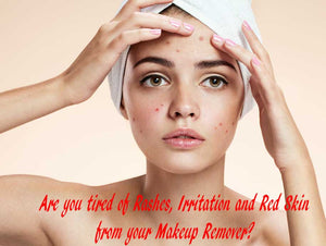Are you tired of Rashes, Irritation and Red Skin from your Makeup Remover?