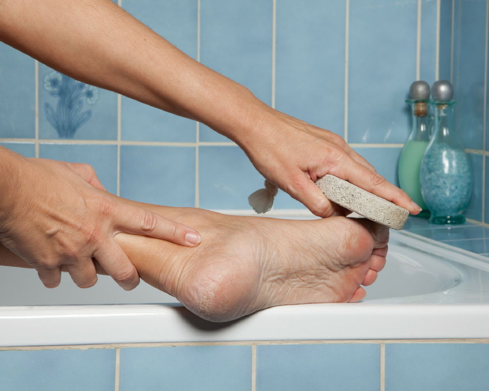 8 Facts About Cracked Heels You May Not Have Known