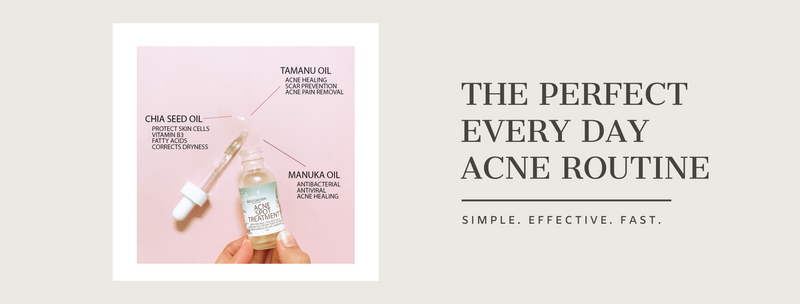 The Perfect Everyday Acne Routine!