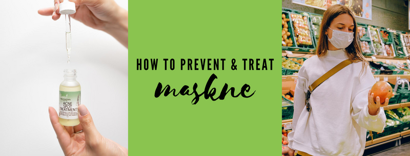 How to Prevent & Treat Maskne
