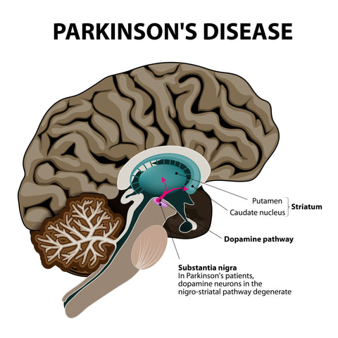 cannabis-and-its-positive-effects-on-parkinsons-disease-symptoms