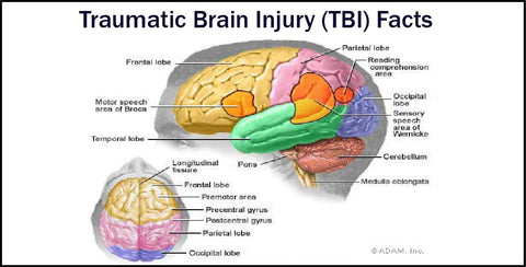 an analysis of the effects of traumatic brain injury The effects of a mild traumatic brain injury (tbi), although neither lethal nor disruptive, often cause significant, long-term debility unfortunately, there are no proven diagnostic tests for determining the degree of disability expected or for directing ongoing treatment.
