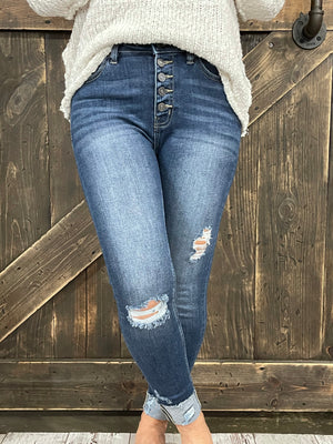 High Rise Distressed Button Fly Skinny Jean