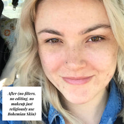 Image of woman with no filters, editing or makeup just healthy skin.