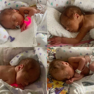 Rare identical quadruplet girls born in Minnesota!