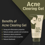 Acne Clearing Face Gel for Men 50g