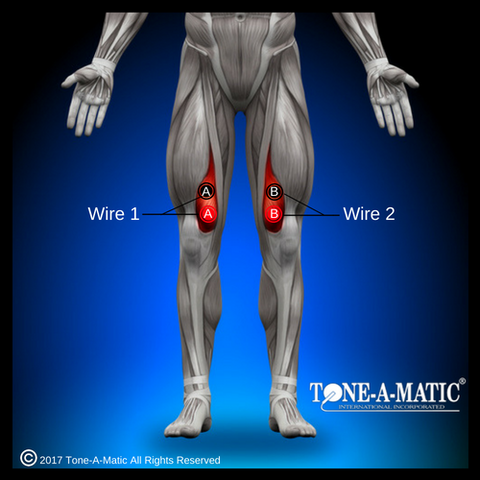 electrode pad placement for vastus medialis