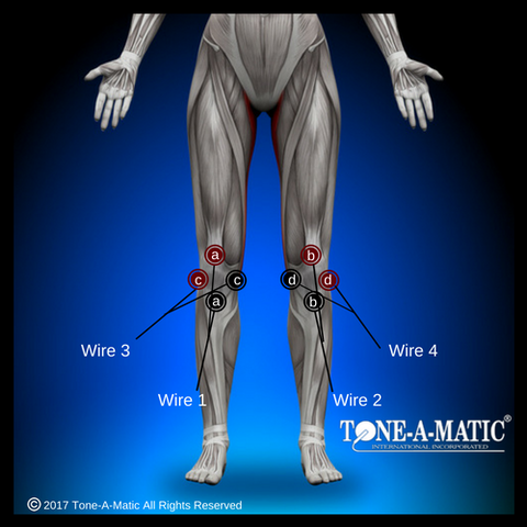 tens electrode pad placement chart for knee pain