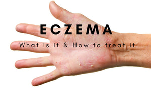 Eczema | What is it & How to treat it