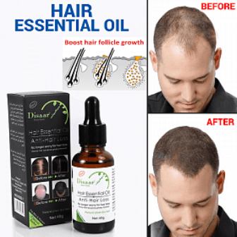 Hair Essential Oil Anti Hair Loss Oil 30g