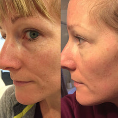 before after micro needle microneedling nima baltic born pores fine lines smooth skin facial treatment