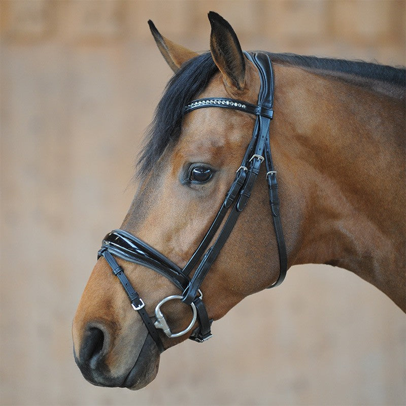 Anatomic Patent Bridle