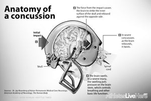 Should You Exercise After A Concussion?