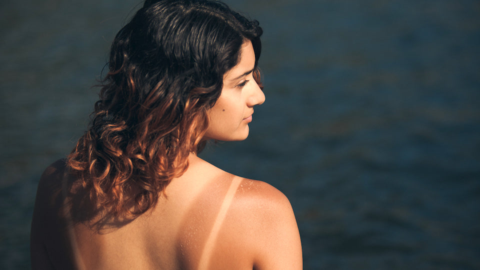 How to treat your sunburn naturally!