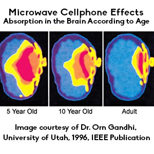 image of a brain being subjected to radiation from a cellphone