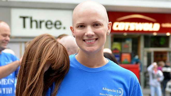 Too Young to Go Bald : Alopecia UK say NHS should provide 1 wig a year!