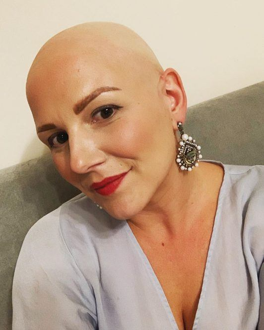 Jo Tucker is a ' baldmothertucker ' & raising Alopecia Awareness
