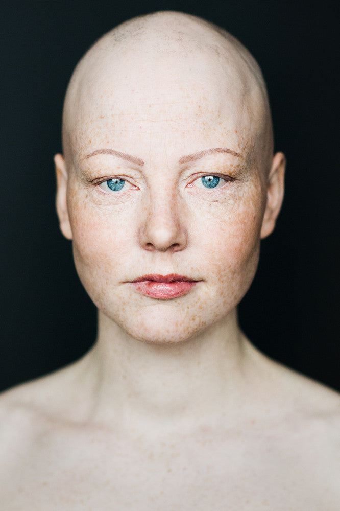 Portraits of Women with Alopecia Redefine Femininity