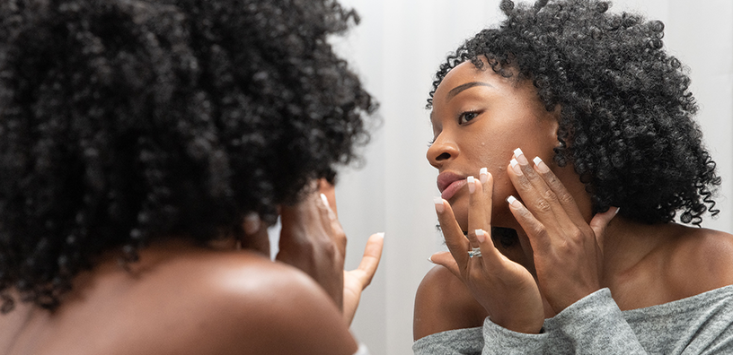 Magic or Myth: Acne