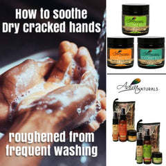 How to soothe dry cracked hands roughened from frequent hand washing