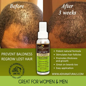 Hair Growth Booster (For Thinning or Balding Hair)