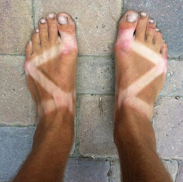 A man's feet shown after a summer of wearing Chacos. The straps make a defined X with fair skin surrounded by brown, tanned skin.