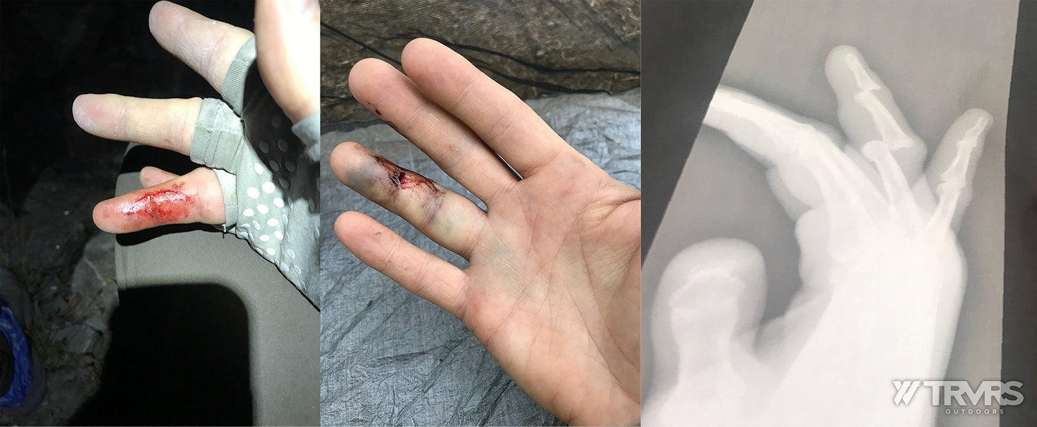 Cameron Hummel's Broken Finger - Pfiffner Traverse, Rocky Mountains, Arapaho, Indian Peaks, Colorado, Ultralight, Backpacking | TRVRS Outdoors