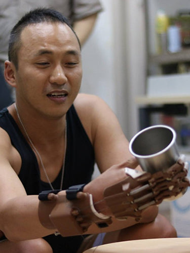 Patient Eric utilizing 3D printed prosthetic hand to grip a cup.