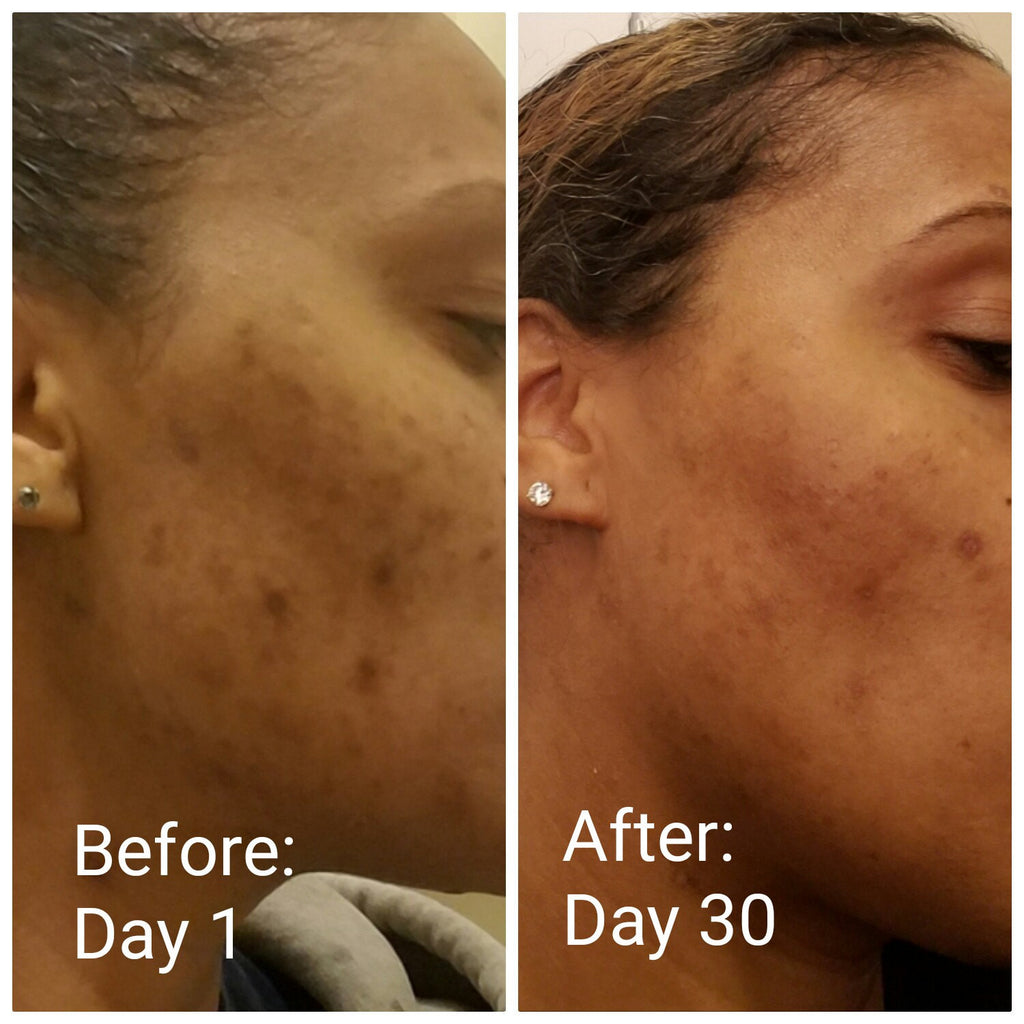 Get rid of oily skin & persistent breakouts!