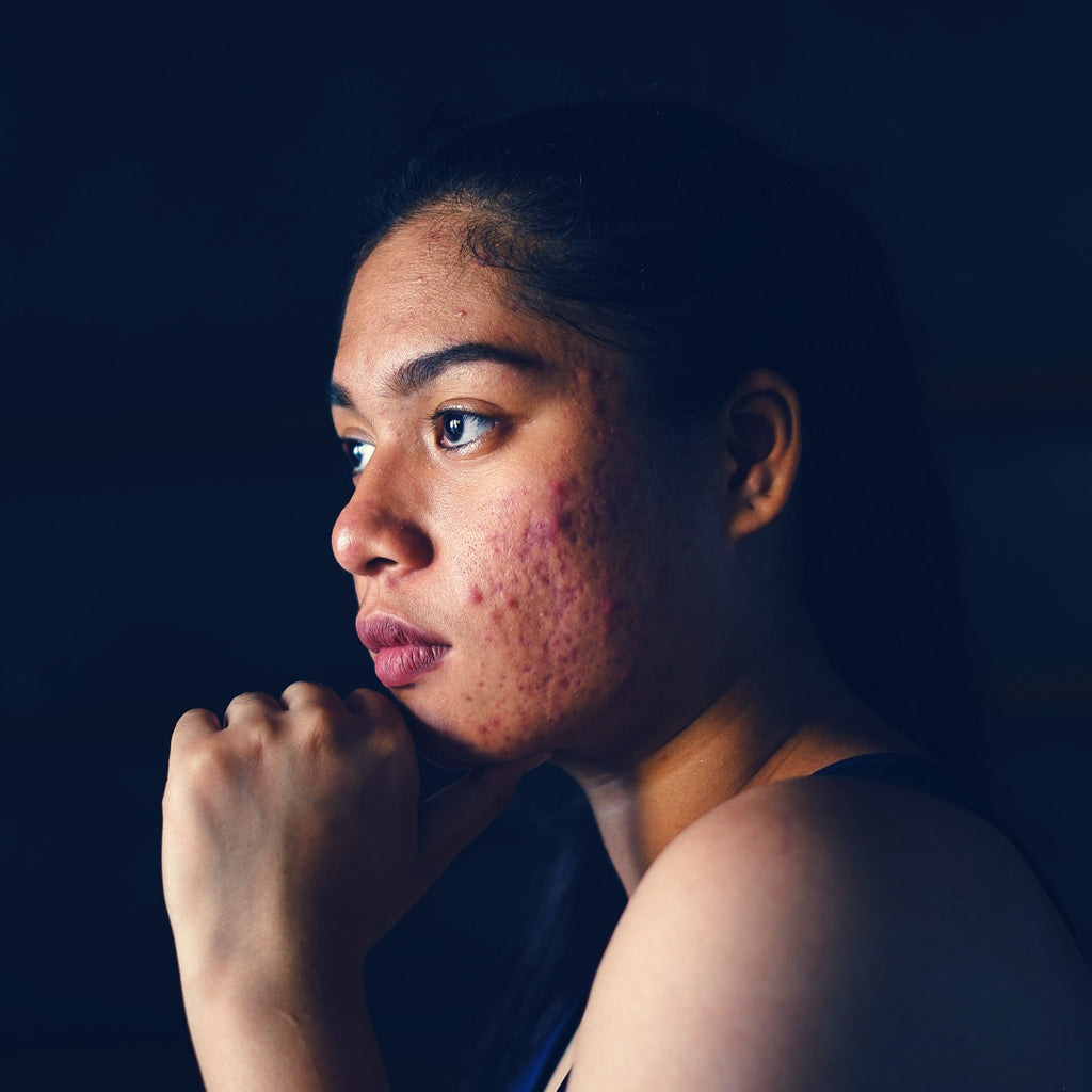 Acne, Inflammation, Eczema, Are They Signaling Deeper Health Issues?