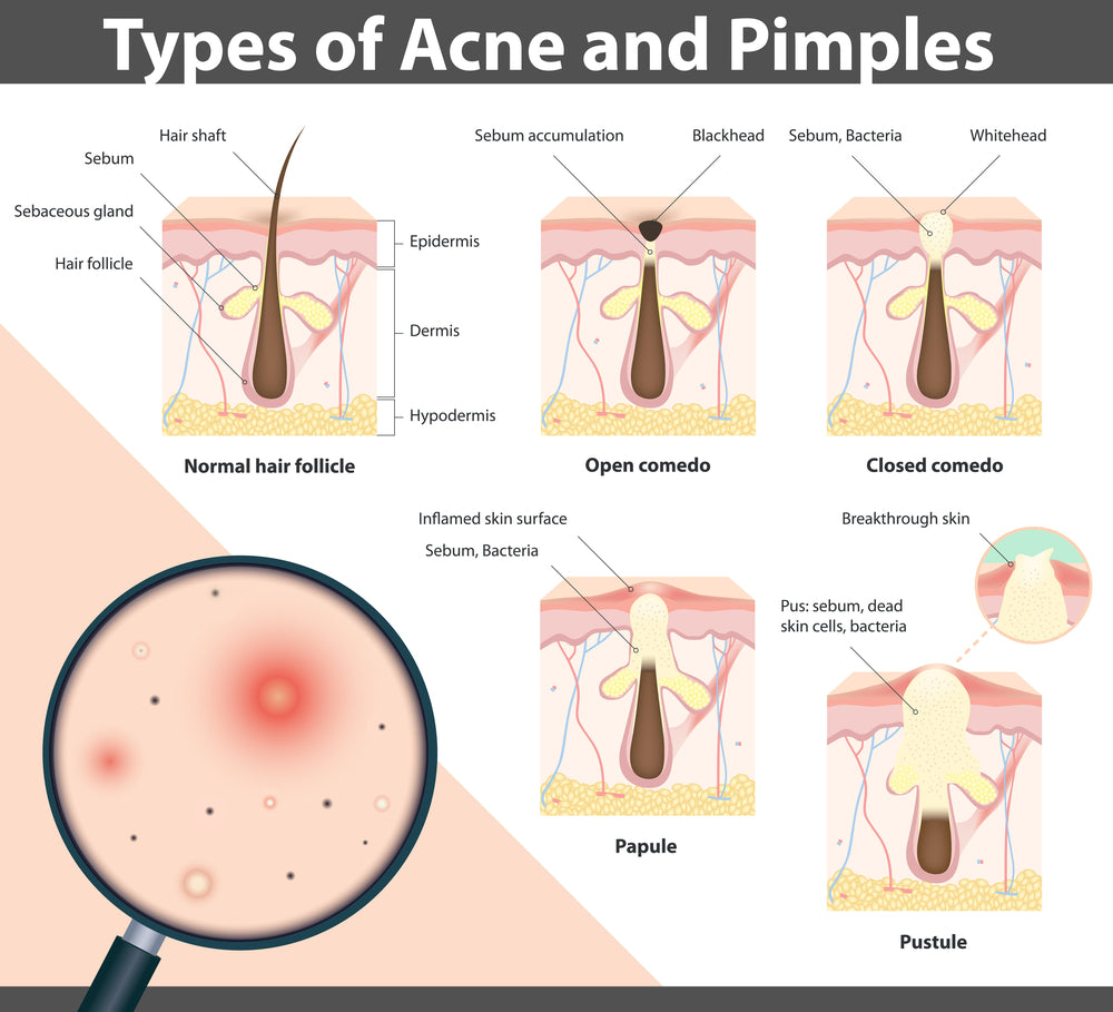 Acne Removal Moisturizer Awesome Curls