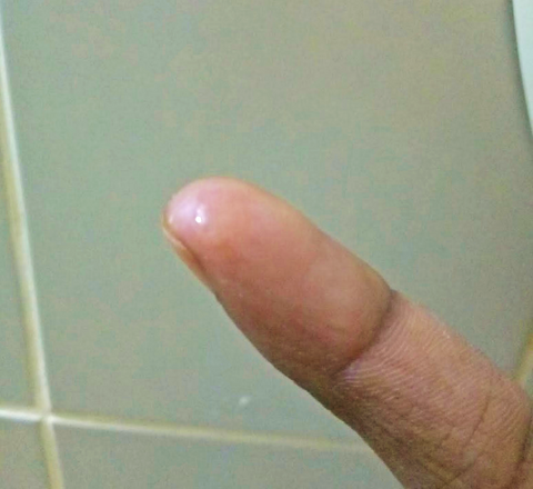 fingertip has a droplet of peel to apply