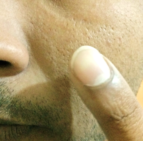 the finger is applied to the cheek where the scarring is