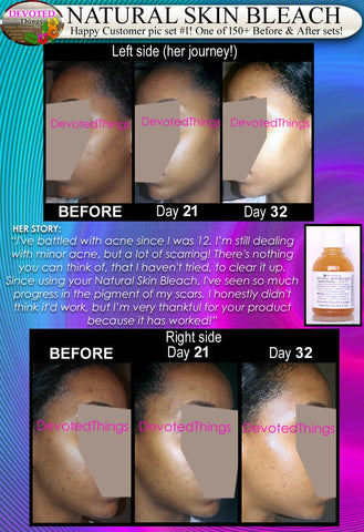 African American Skin Bleaching Best Acne Scar Lightening Product Dark Spot Remover Natural Acne Scar Remedy Treatment Before and After pics Devotedthings products