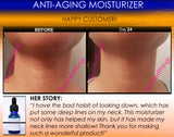 Anti Aging Moisturizer For Dry Skin, Wrinkles, Age Spots, Freckles, and Pore Shrinking - DevotedThings