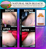 Natural Skin Bleaching Product That Works (Acne Scar Lightening, African American Skin, Hyperpigmentation Spots) - DevotedThings