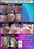 Melasma Facial Treatment Before and After Skin Lightening pics African American Facial Skin Whitening For Dark Skin On Face DevotedThings products