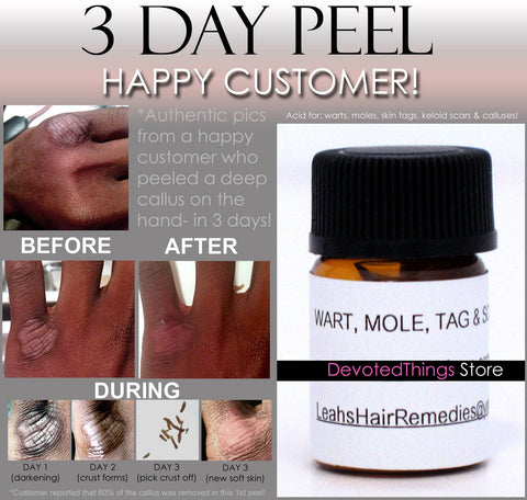Acid, Peel - 3 Day Peel For HPV Warts, Plantar Warts, Moles, Skin Tags, And Keloid Scars Removal Deepest Gentle Acid