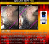 Treatment for Indented Scars Acne Chicken Pox Pitted Scar Removal Peel With Hyaluronic Acid - DevotedThings