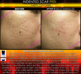 Acid, Peel - Treatment For Indented Scars Acne Chicken Pox Pitted Scar Removal Peel With Hyaluronic Acid
